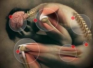 Una mappa dei punti del corpo dove spesso si prova dolore cronico